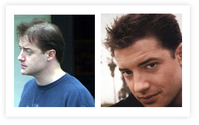 Brendan Fraser Hair Transplant pictures Before and After