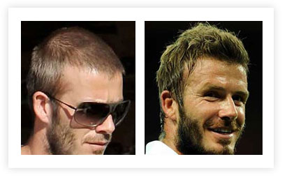 David Beckham Hair Transplant pictures Before and After