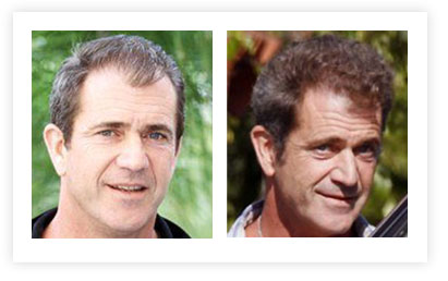 Mel Gibson Hair Transplant pictures Before and After