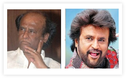Rajni Kanth Hair Transplant pictures Before and After