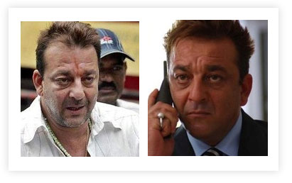 Sanjay Dutt Hair Transplant pictures Before and After