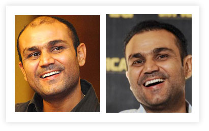 Virender Sehwag Hair Transplant pictures Before and After
